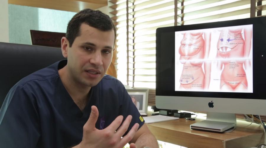 عمليات شد البطن مع الدكتور طارق قبطي