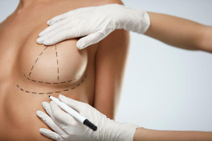 الدكتور طارق قبطي عمليات تجميل الثدي